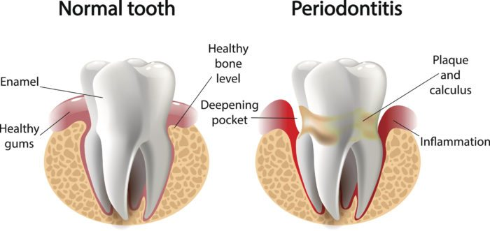 Periodontal Disease Treatment in Reseda